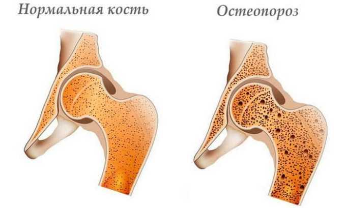 Свечи от геморроя - недорогие и эффективные свечи от геморроя при шишках