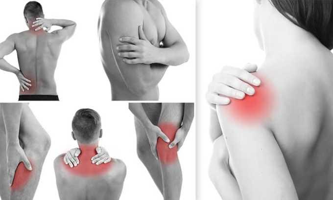 Частые боли в мышцах - признак заболевания