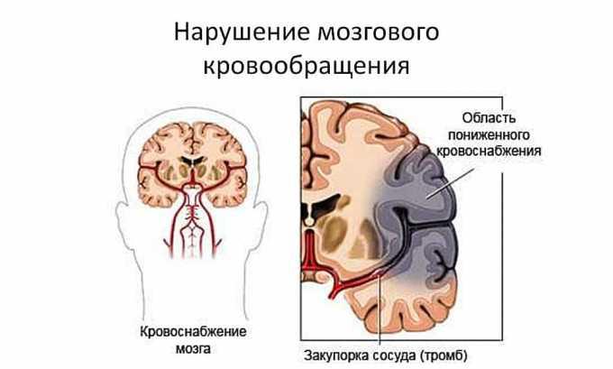 Элькар показан к применению при ухудшении мозгового кровообращения