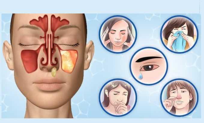 Преднизолон назначают при наличии у пациентов аллергической реакции
