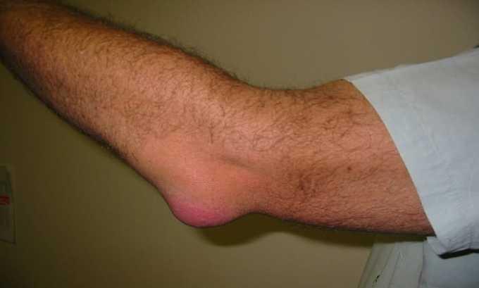 Анкилозирующий спондилит является симптомом к назначению препарата