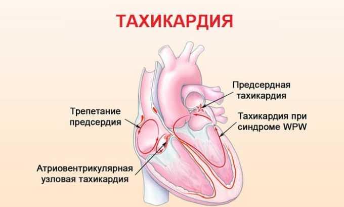 Медикамент используется в терапии тахикардии