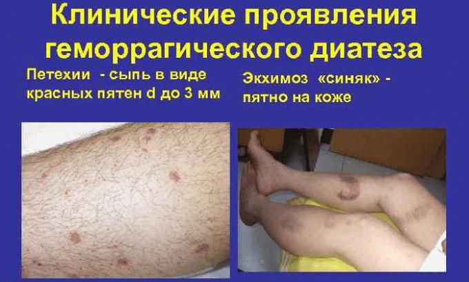 Препарат нельзя принимать при геморрагическом диатезе