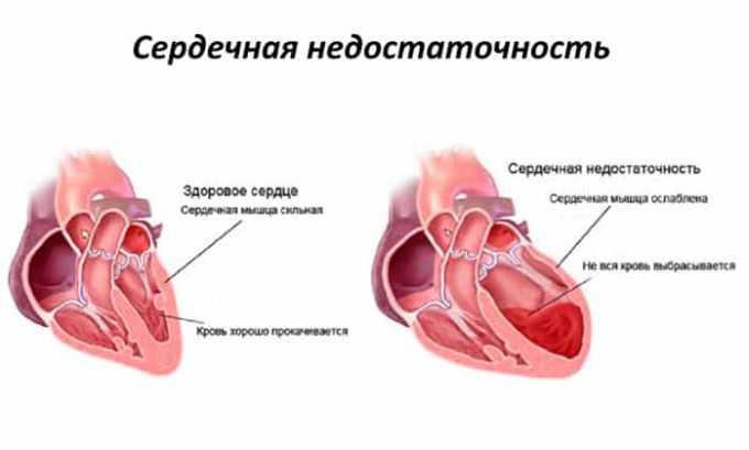 Препарат противопоказан при декомпенсированной сердечной недостаточности