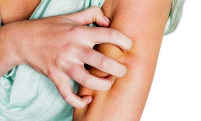 Кеналог назначается при кожных заболеваниях