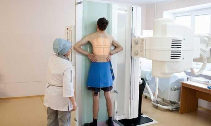 Больной должен пройти рентгенологическое исследование грудной клетки, чтобы выявить патологические изменения в легких