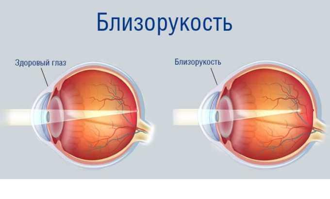 Озурекс необходим для лечения макулярных отеков при осложненной миопии (близорукости)