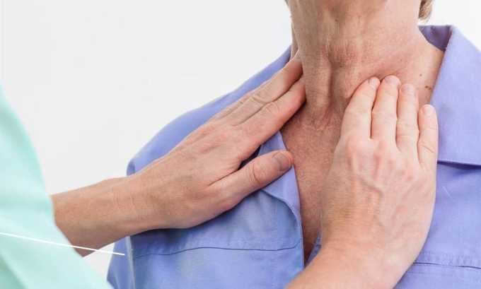 Доброкачественные новообразования щитовидной железы являются причиной развития диффузно-узлового зоба