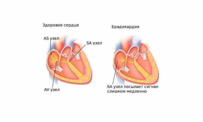 При передозировке лекарством может возникнуть брадикардия