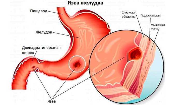 Относительно противопоказано принимать препарат при язве желудка