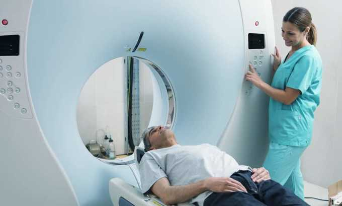 Частая лучевая терапия головы и шеи может повлиять на развитие опухоли щитовидной железы