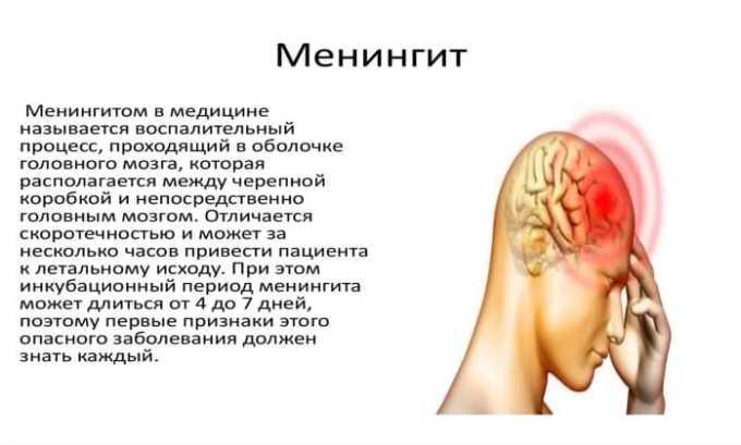 У пациентов с красной волчанкой на фоне приема лекарства может развиться асептическая форма менингита