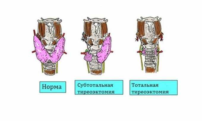 Пониженный свободный тиреоидный гормон определяется при удалении части щитовидной железы