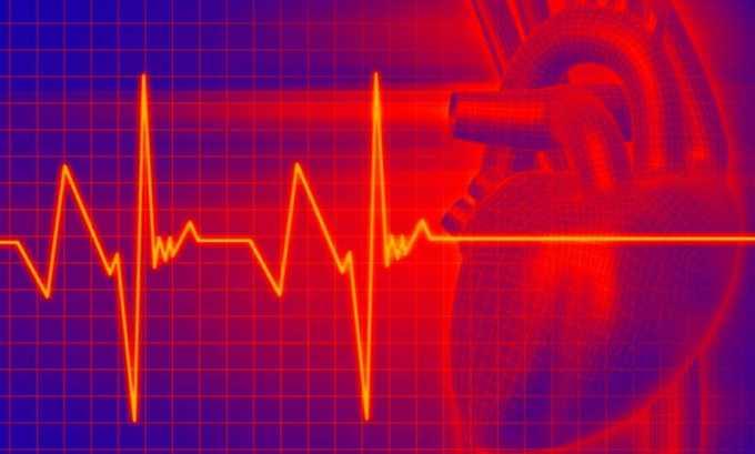 Характерными признаками, свидетельствующими о наличии острого йододефицита, являются аритмия или тахикардия