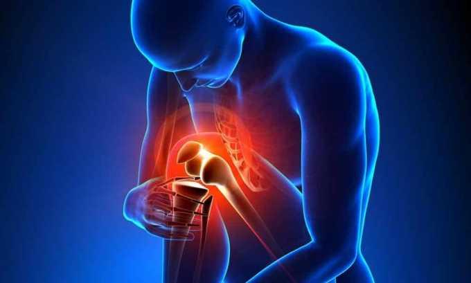 При наличии ревматоидного артрита повышается риск развития диффузного зоба