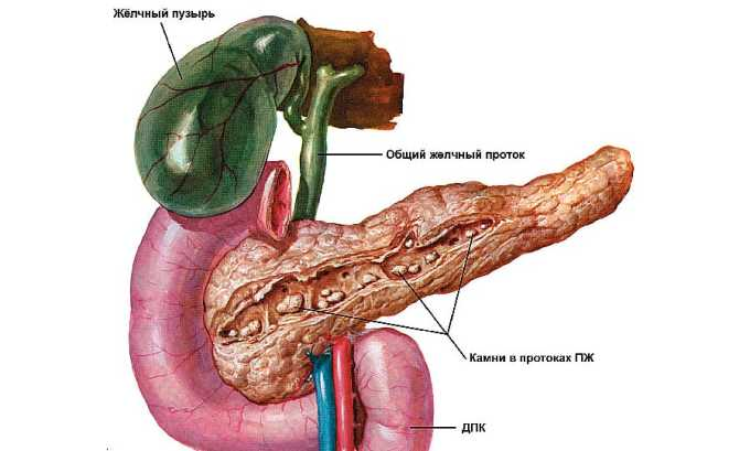 Левокарнил назначается при панкреатите