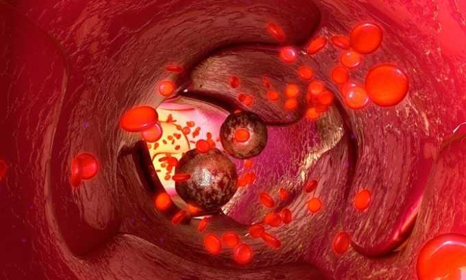 Заболевания периферических сосудов являются противопоказанием к применению Лево карнитина
