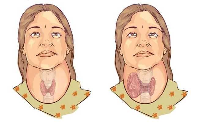 Прогрессирование медуллярного рака щитовидной железы приводит к возникновению зоба
