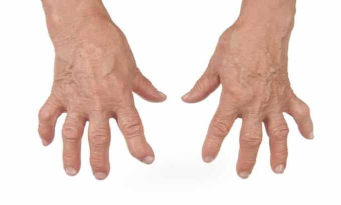 Препарат используют для лечения артрита