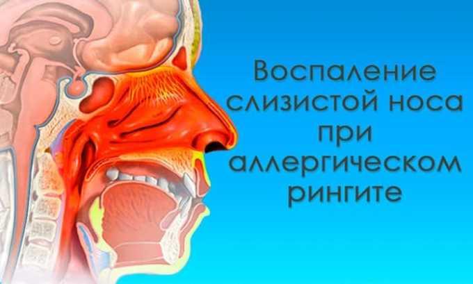 Комбинирование лекарственных средств часто применяется при устранении осложненного ринита