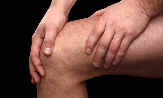 Кетопрофен эффективен при коленном артрозе