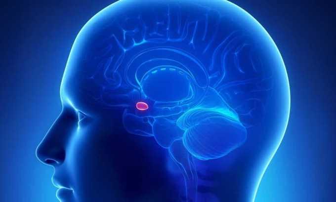 Опухоль гипофиза способствует выработке избыточного количества тиротропина, негативно влияющего на щитовидную железу