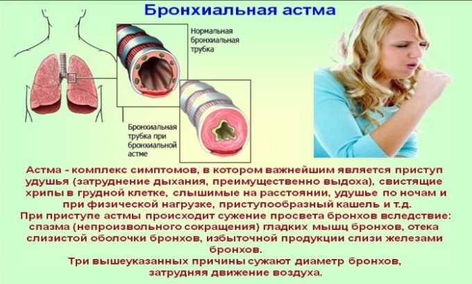 Препарат используют при бронхиальной астме