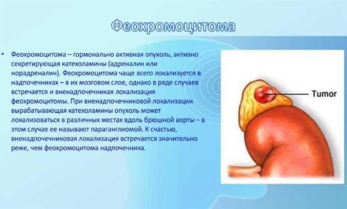 Строго запрещено назначать препарат людям с феохромоцитомой