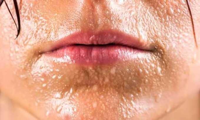 От приема препарата может быть побочное действие в виде повышенного потоотделения
