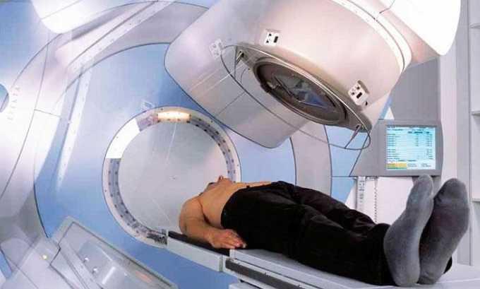 Патология может развиться после лучевой терапии онкологических заболеваний