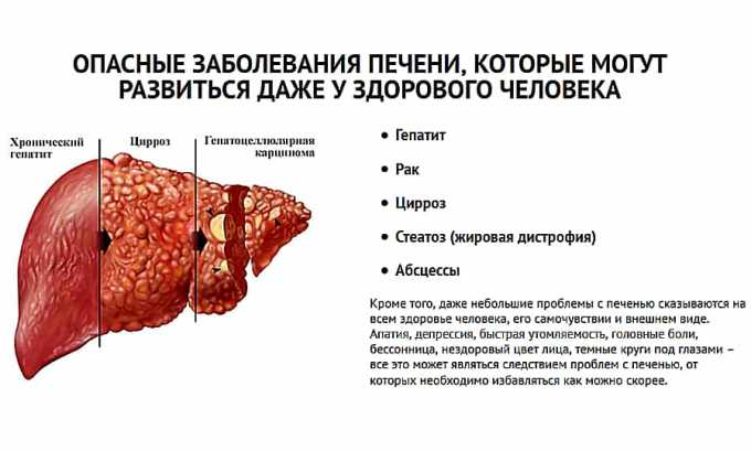 Левокарнил назначается при заболеваниях печени