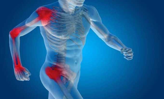 Препарат принимают при воспалении мышц, суставов