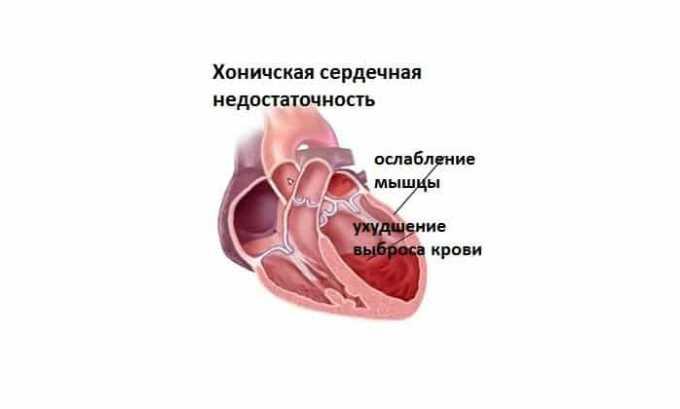 В клинической практике препарат применяется для лечения сердечной недостаточности хронической формы