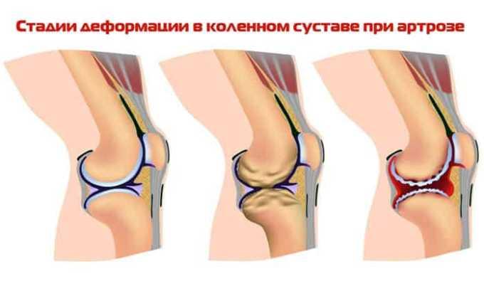 Показанием к назначению препарата являются артриты и артрозы