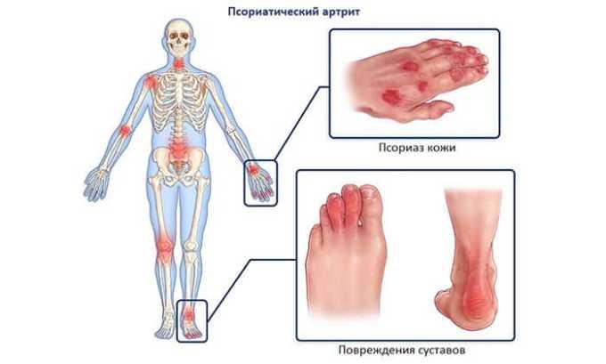 Вольтарен назначают при псориатическом артрите