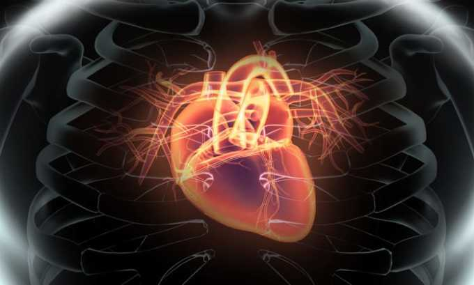Препарат назначается при инфаркте
