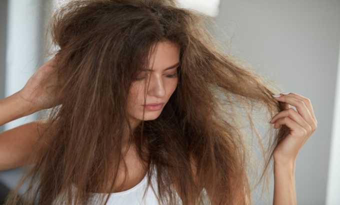 Симптомом недостатка гормонов щитовидной железы могут проявлятся в ломкости и сухости волос