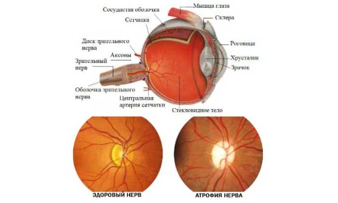 Капли Калия Йодид применяют при атрофии зрительного нерва