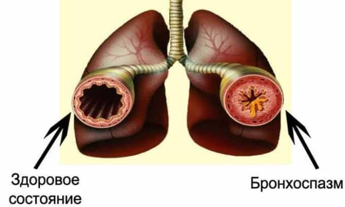 Диклофенак Акри может вызвать бронхоспастические реакции