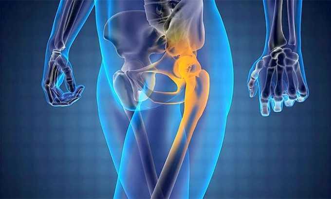 В качестве побочного действия может появиться остеопороз
