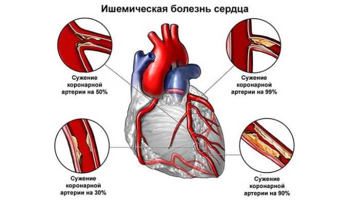 Препарат показан при ишемической болезни сердца