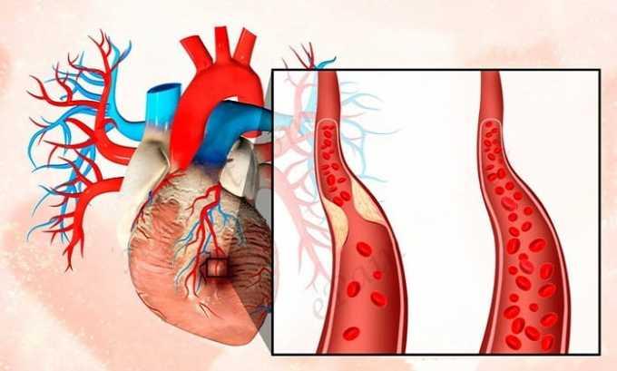 От препарата возможно появление побочного эффекта как стенокардия