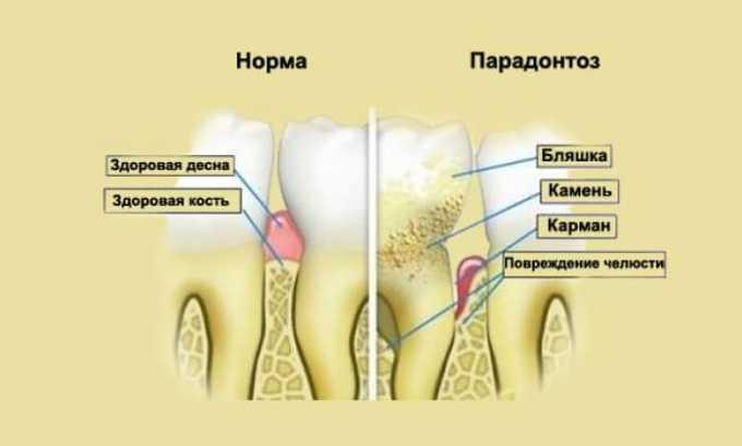 Пародонтоз может быть результатом повышения количества гормонов