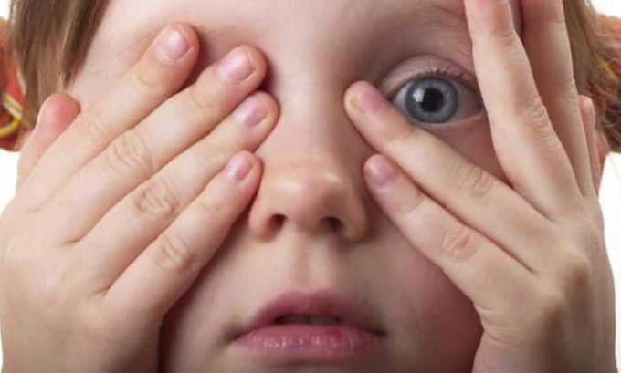 При аллергической форме конъюнктивита назначают Кортеф