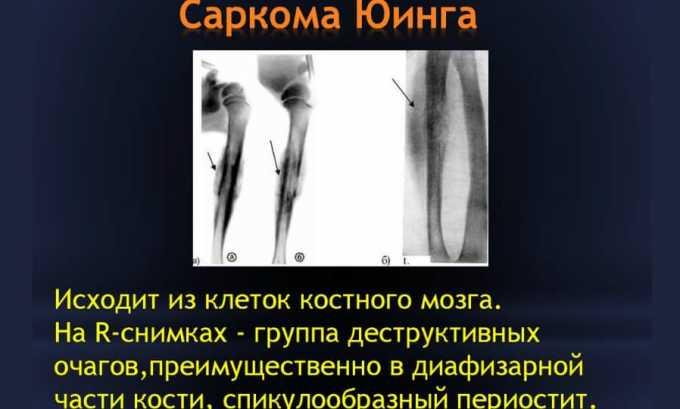 Препарат используется при саркоме Юинга