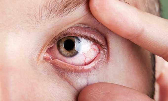Препарат принимают при воспалении зрительного нерва