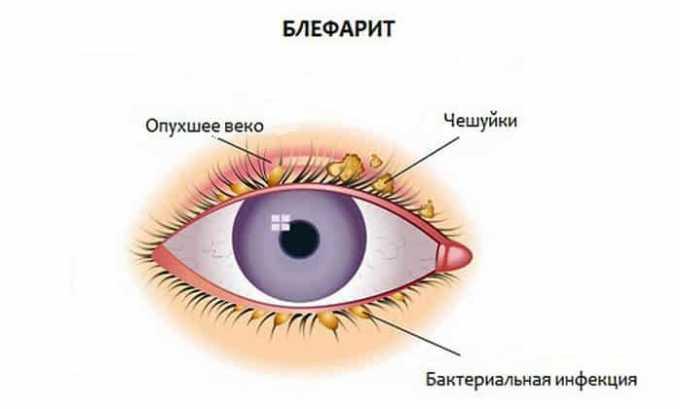 При индивидуальной негативной реакции на компоненты лекарства диагностируют ринит и блефарит аллергического характера