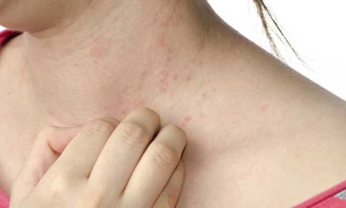 Во врем приема лекарства у пациента может развиться аллергическая реакция
