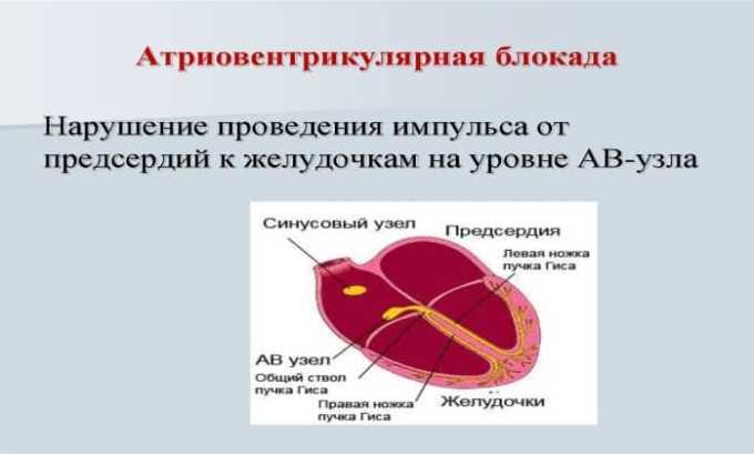 Строго запрещено назначать препарат людям с атриовентрикулярной блокадой II-III степени