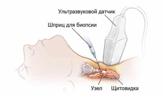 Для исследования кист, узлов и новообразований при беременности назначается пунктуационная биопсия